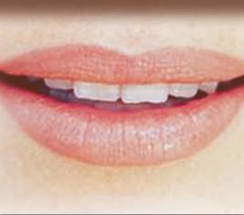 Lippen-Gaumen-Spalte & Pigmentierungen nach Chemotherapien