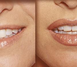 Lippenvolumen