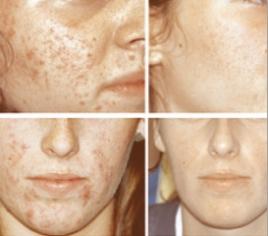 Akne – Narbenbehandlungen