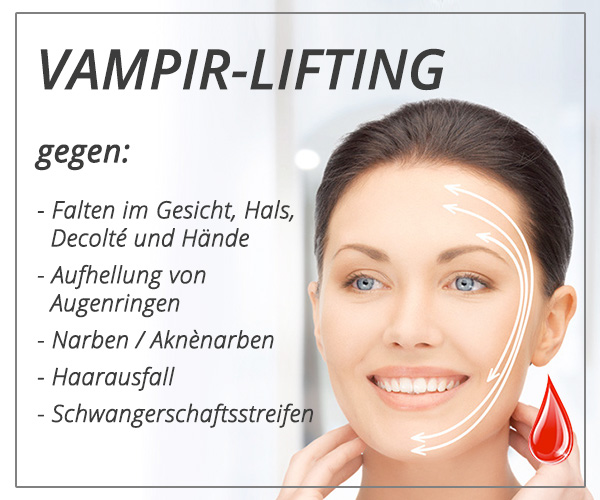 vampir-lifting in Stuttgart