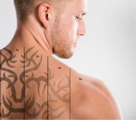 Permanent-Make-up und Tattooentfernung mit Laser