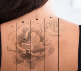 Tattoo- und Permanent Make Up Entfernung