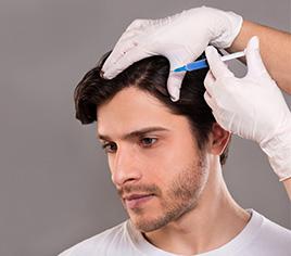 PRP nach Haartransplantat und bei Haarausfall